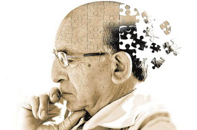 نخستین داروی آلزایمر جهان تولید شد
